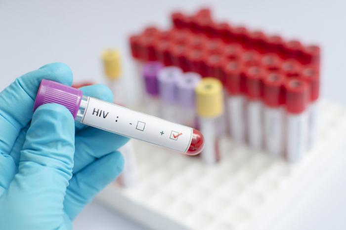 83-Year-Old Man Diagnosed with HIV; Risks Not Confined to the Young